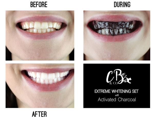 Albirea dintilor cu bicarbonat pareri