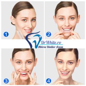 cum se folosesc benzile pentru albirea dintilor